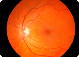 Eye retina | The Eye Shoppe | The Eye Store | Optometrist